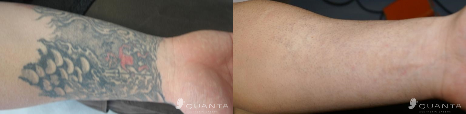 Reset Tattoo Removal – Tattoo Removal Solution