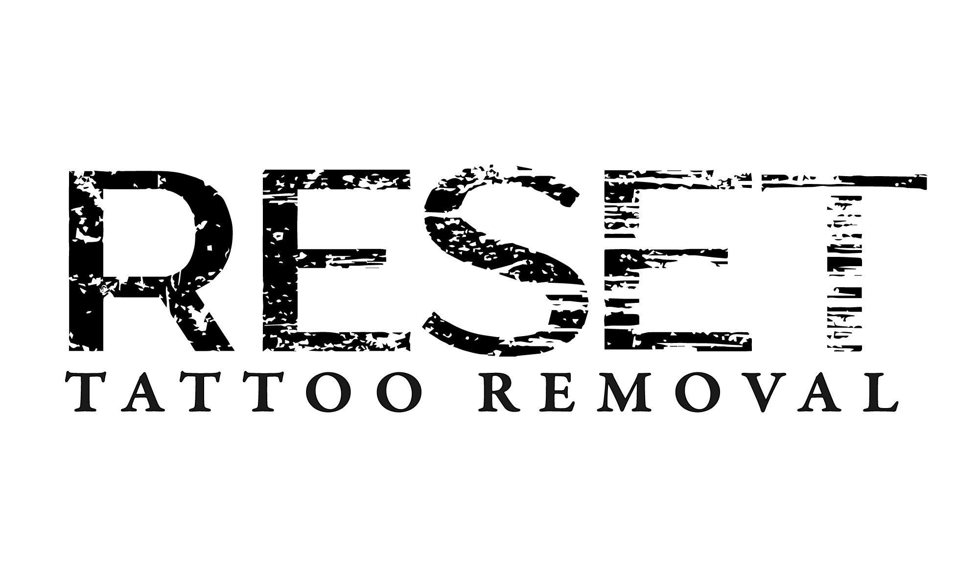 Reset Tattoo Removal Logo-01